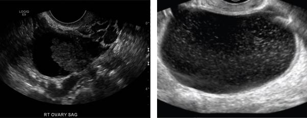 A Better Way To Assess Ovarian Cancer Risk Permanente Medicine